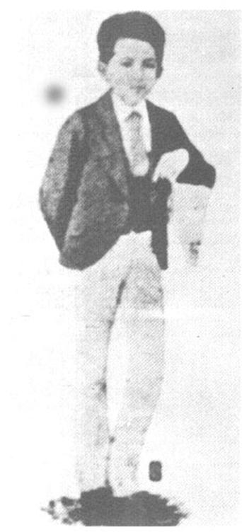Jose Rizal was born with a big head
