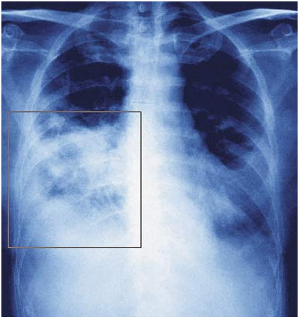 He suffered from pneumonia and because of this part of his lung was removed